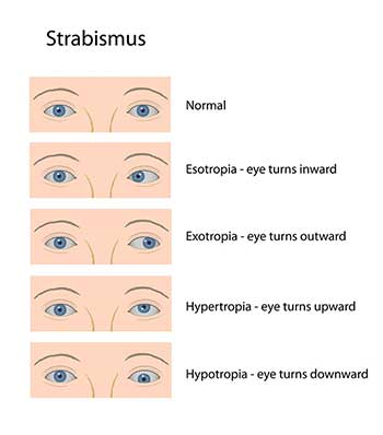 Mechanicsburg Strabismus Symptoms