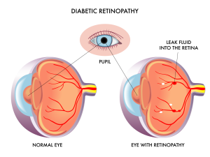 Mechanicsburg Diabetic Eye